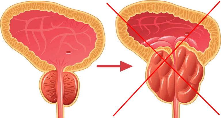 Чили простатита хронический простатит можно вылечить форум